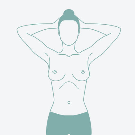 Breast example 2